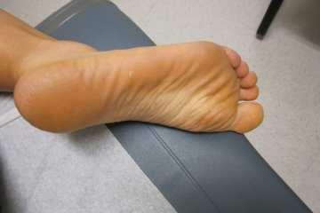 Foot Herpes