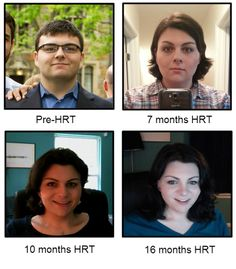mtf transformation before and after