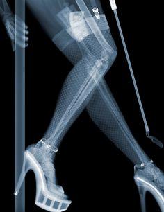 strange x rays
