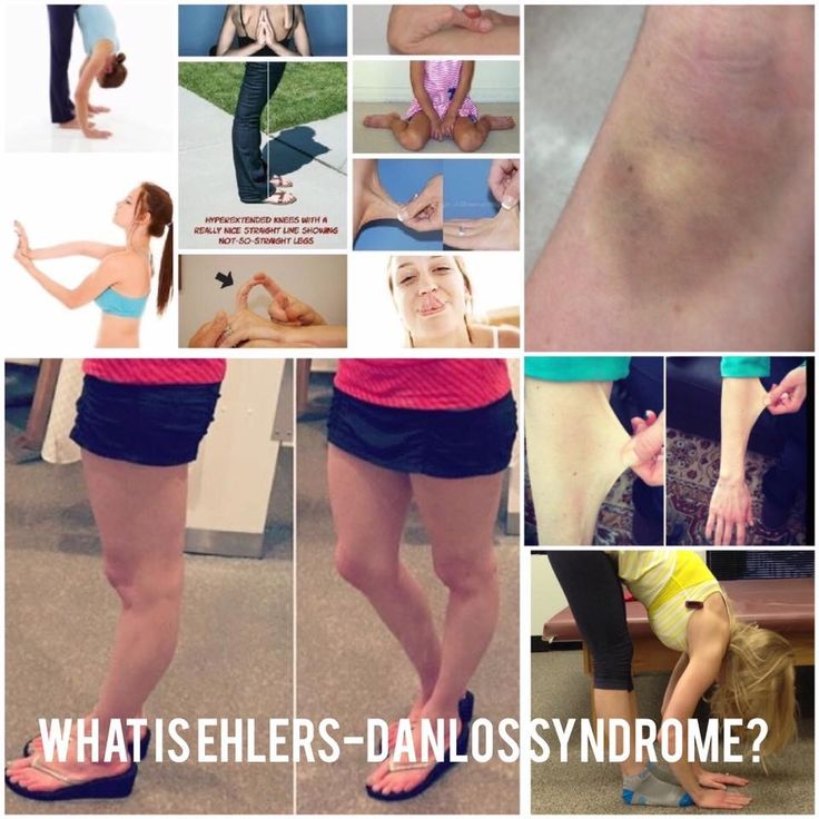 Hypermobility syndrome ehlers danlos meniere's disease tinnitus, Ask a Doctor about Hypermobility syndrome 1