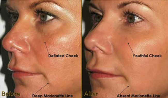 image of Prp Injections For Face In Ohio 01