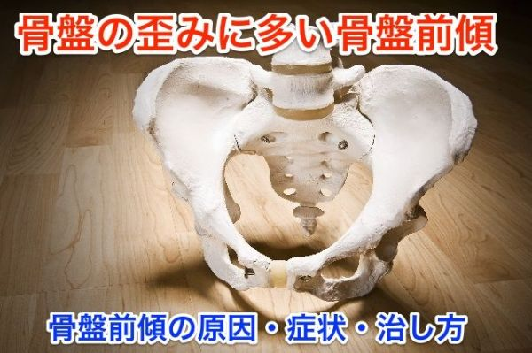 骨盤 前傾