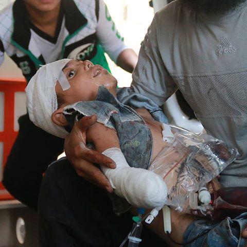 Alep massacre