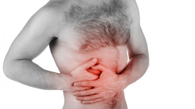 cancerul colorectal-cauza-tratament