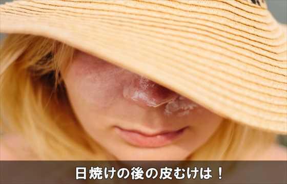 hiyakekawamuketaishohou10-1