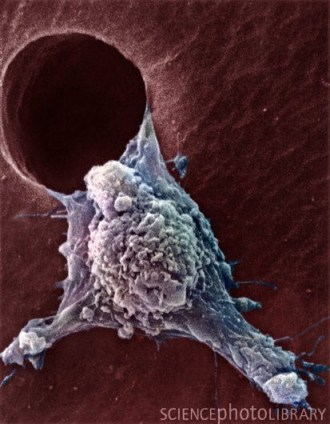 Migrating cancer cell imaged through the scanning electron micrograph (SEM) (Credit: AMI IMAGES/SCIENCE PHOTO LIBRARY)