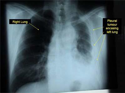 Malignant mesothelioma of the pleura