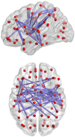 Network of decreased brain functional connectivity in adolescents with internet addiction (Credit: PLoS ONE)