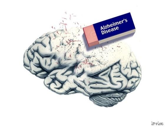 Alzheimer's disease (Credit: alzheimer's disease by *the-infinite-opi/DeviantArt)