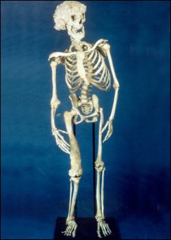 Joseph Merrick skeleton (Source: Royal London Hospital Archives/Wikipedia)