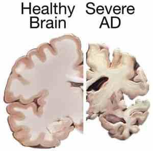 Alzheimer's disease could be transmissable like prion illness