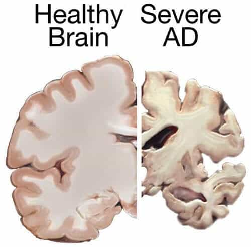 New amyloid-reducing compound could be a preventive measure against Alzheimer's