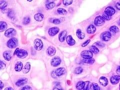 Thyroid_papillary_carcinoma_histopathology_283_29_s