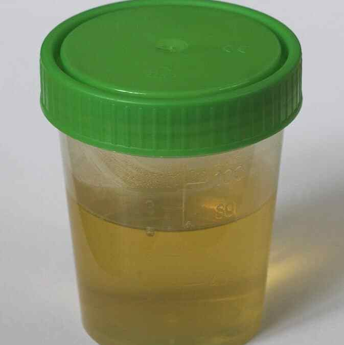 Study debunks common myth that urine is sterile