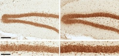 Signs of Brain Aging Are Reversed in Mice