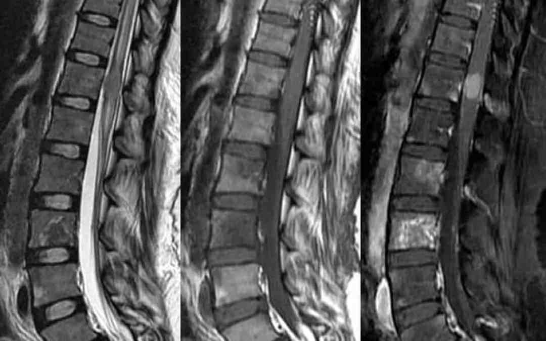 Spinal cord mass arising from neural stem cell therapy