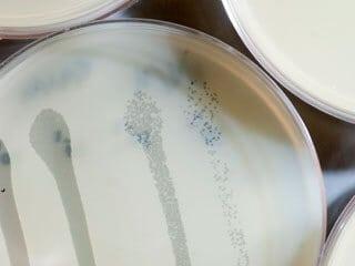 Discovery reveals how bacteria distinguish harmful versus helpful viruses