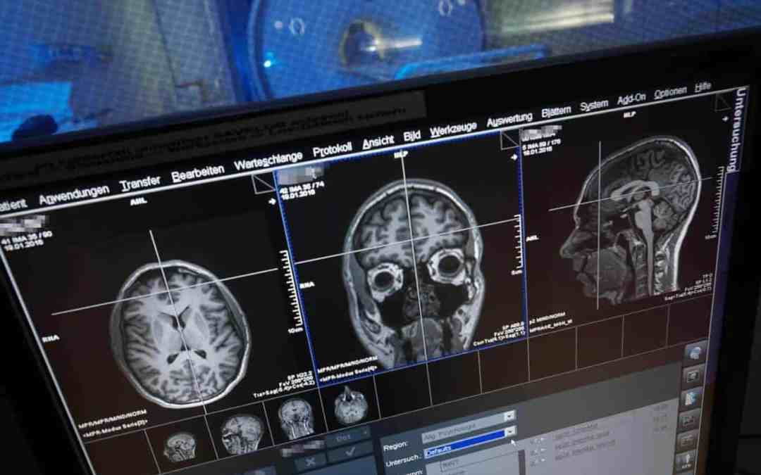 Both hemispheres of the brain process numbers