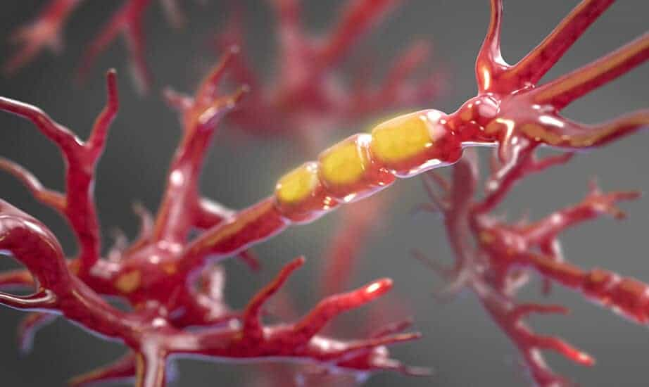 Researchers pinpoint enzyme that triggers cell demise in ALS