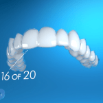 How do Invisalign aligners work?
