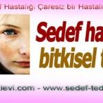 Sedef Hastalığı Bitkisel Tedavi