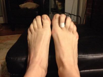 plantar plate tear toe running