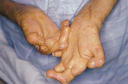 05.05.leprosy