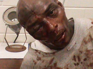 Kelvin Stevenson, Georgia prisoner beaten with hammer by guards 123110