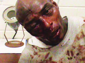 Kelevin Stevenson, Georgia prisoner beaten with hammer by guards 123110