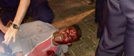 University of Virginia honor student Martese Johnson was viciously beaten by white police March 18. At the highly ranked school, average SAT scores regularly exceed 1300, and there are typically fewer than 1,500 African American students among the 21,000-member student body. Black students report feeling ostracized.