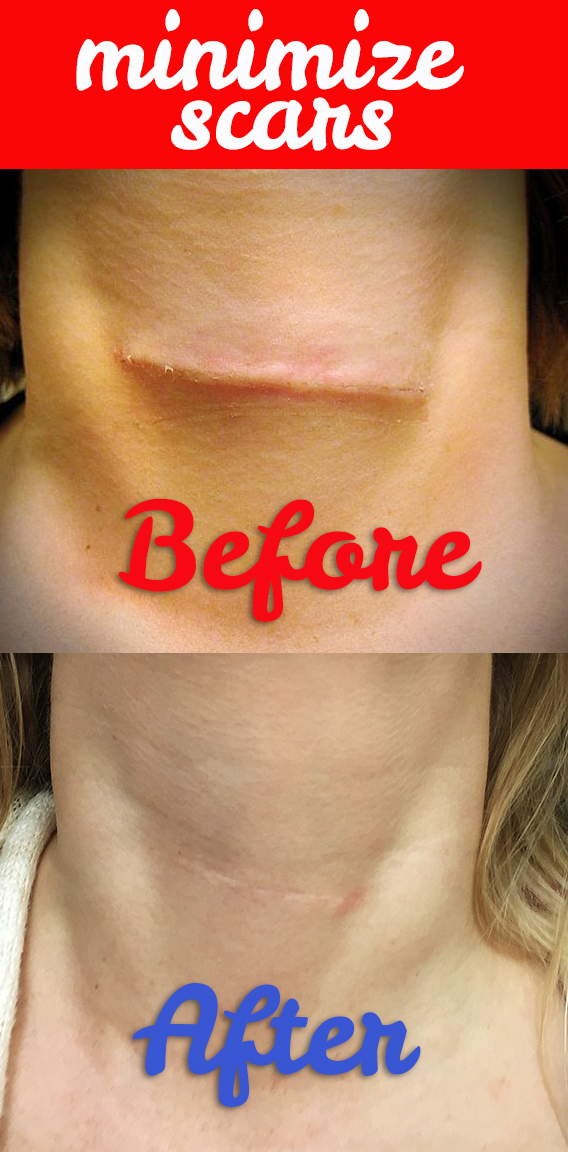 how-to-minimize-scar-vertical