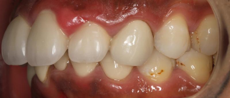 宮地真緒の歯・口内接写 (4)