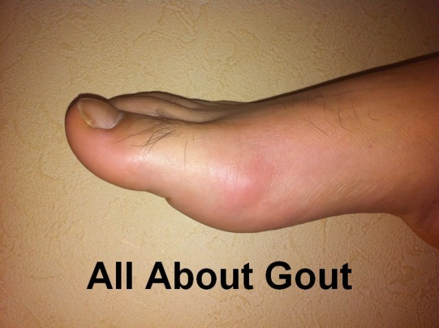 Gout Causes, Symptoms, Treatment and Food Selection