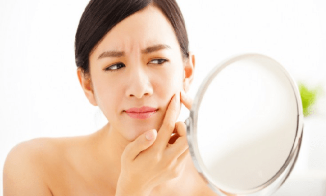Best Acne And Anti Pimple Creams For All Types Of Skin