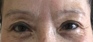 BEFORE EYEBROW MICROBLADING
