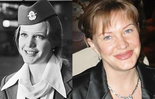 Елена Проклова до и после пластической операции