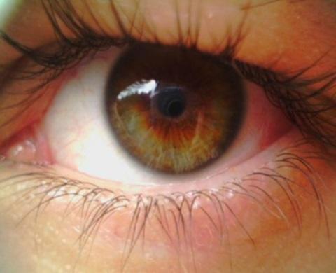 Что делать, если в глазу лопнул сосуд?
