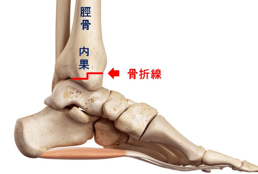 足首内果骨折の図説 赤線の部分が骨折する