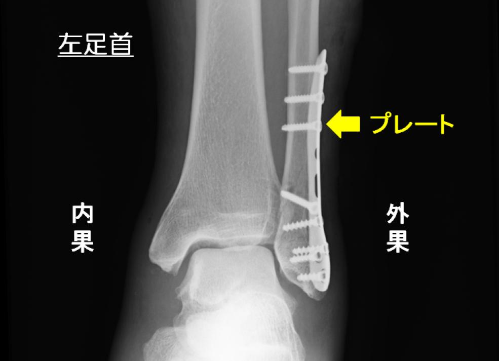 左足首の外果骨折の手術後のレントゲン プレートを使用している