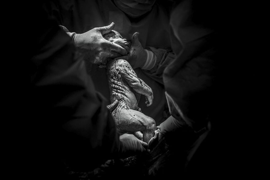 professional-birth-photography-competition-winners-labor-2017-53-58b02c146d532__880