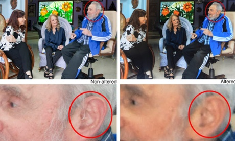 An Associated Press composite showing the two versions of Fidel Castro's ear.