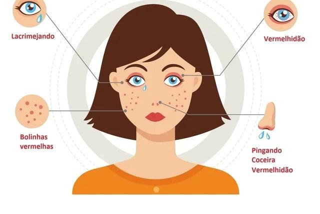 Formas de alergia a cosméticos