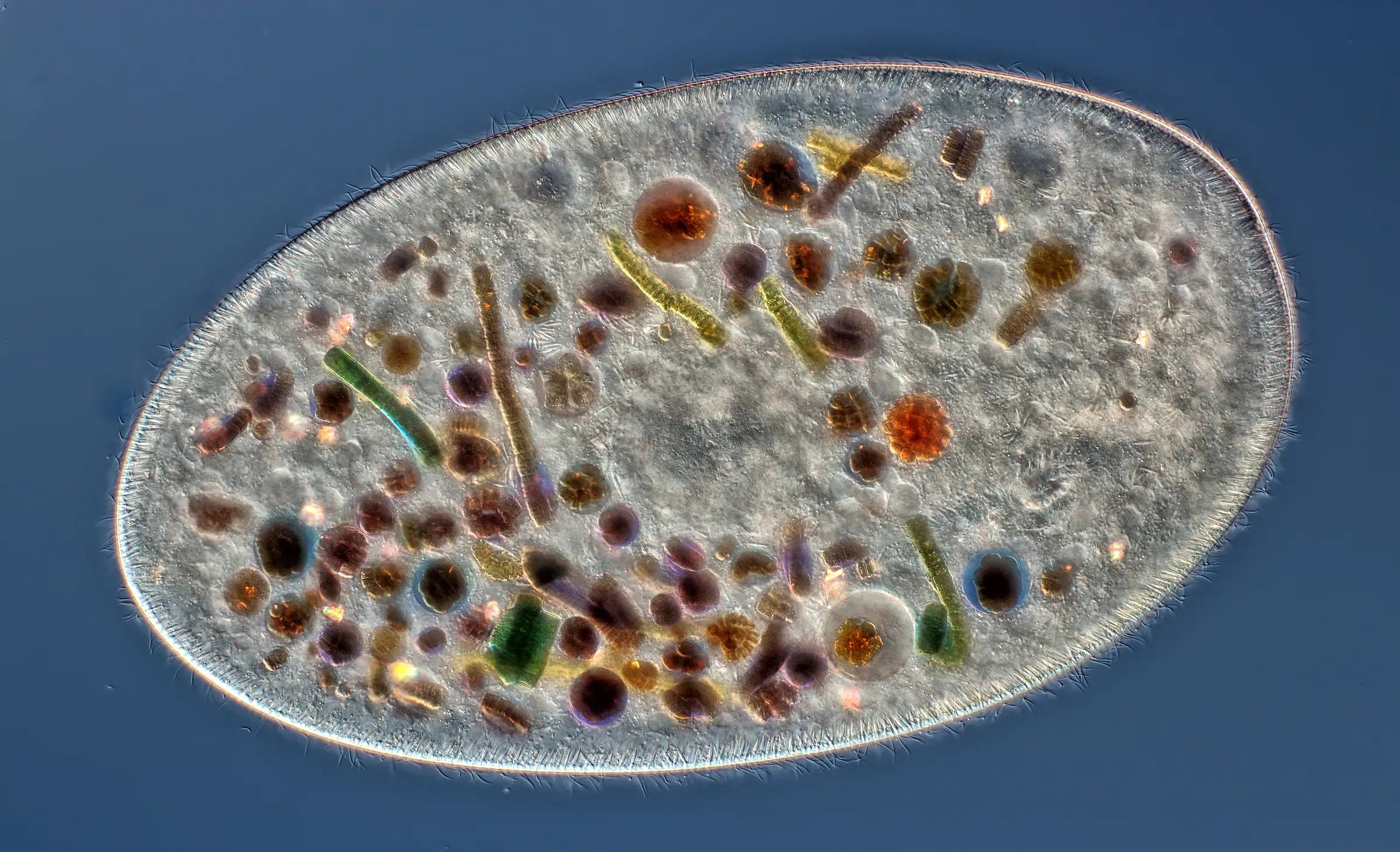 A Frontonia cell showing ingested food, cilia, mouth, and trichocysts