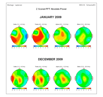 qEEG Images of Michael's Brain a Year Apart + 25 LENS treatments