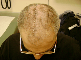 Skull Surgery