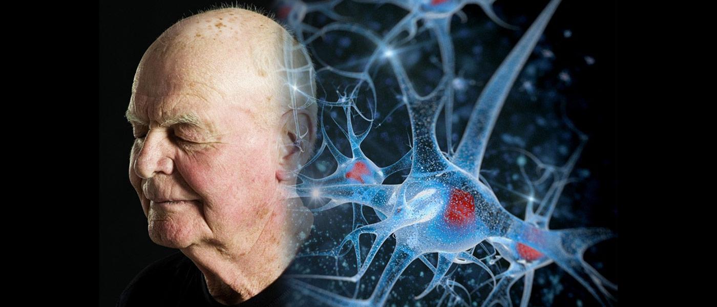 Porque as células do nosso cérebro morrem: Um avanço na luta contra as doenças neurodegenerativas