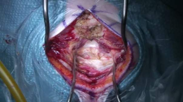 Ependymoma of the IV ventricle