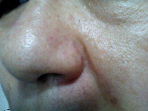 50代 鼻 毛穴