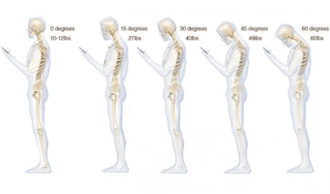 650 1000 movilcuello Seu smartphone pode danificar seriamente a sua coluna