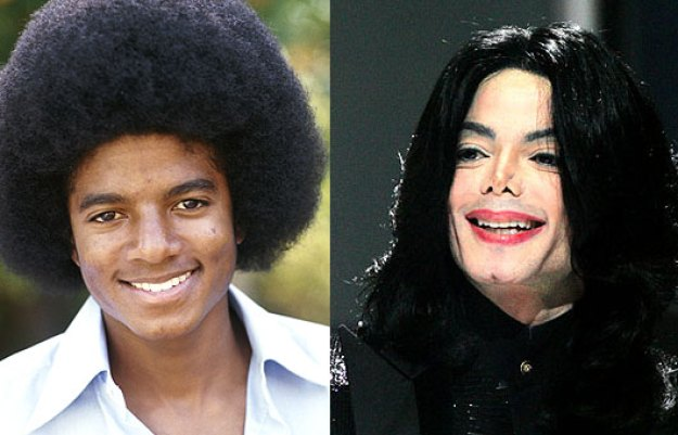 michael-jackson-facelift-before-after